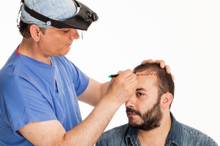 Trapianto di capelli Fue - Rimozione follicolare per unitá