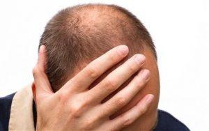 Cosa succede quando arriva l'età quando il capello perde la sua densità?