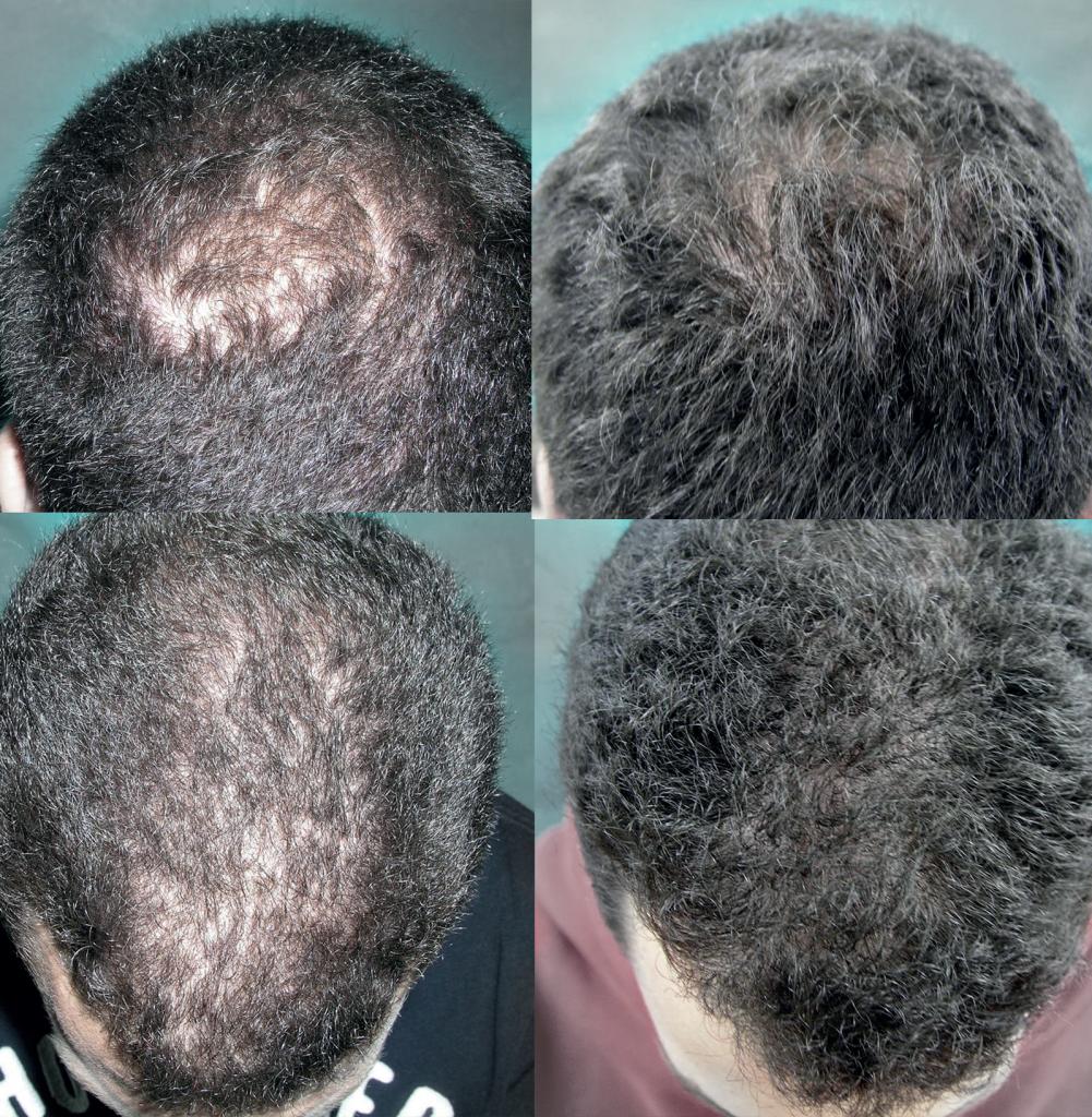 rigenera capelli costo